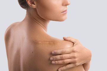 Tổng hợp những cách chữa sẹo lồi hiệu quả nhất