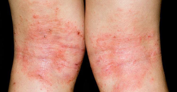 Chàm thể tạng ở trẻ em từ 2-3 tuổi thường xuất hiện tại những nếp gấp của da