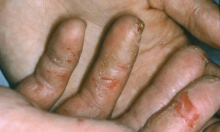 Chàm da tay thường xuất hiện ở các đầu ngón tay - vùng da có mật độ tiếp xúc cao