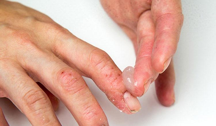Khi bệnh nặng hơn, các triệu chứng ngứa nhiều hơn, bạn cần đến các loại thuốc điều trị chuyên sâu