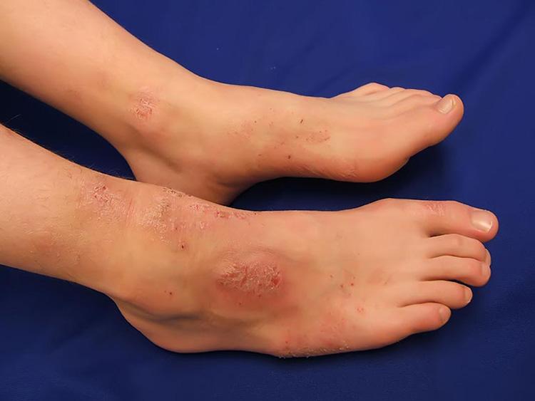 Hình ảnh miêu tả chàm thể tạng trên da