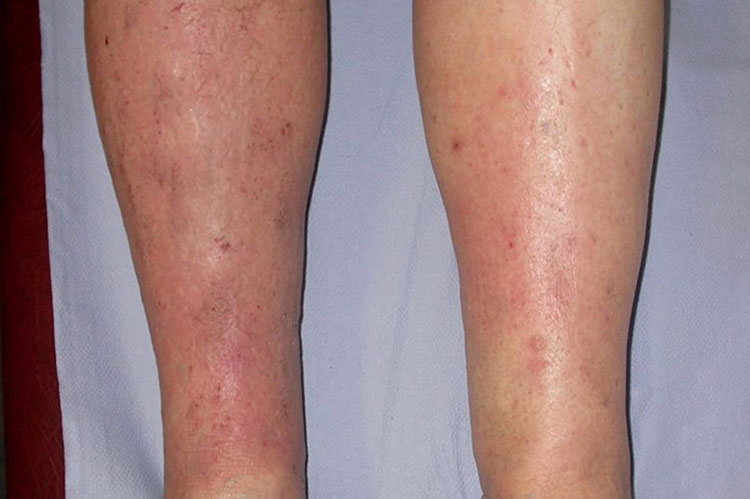 Chàm tĩnh mạch thường gây triệu chứng ở mặt trong của 2 cẳng chân và xung quanh mắt cá chân trong