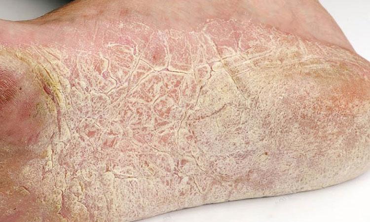Hình ảnh bệnh chàm khô ở chân