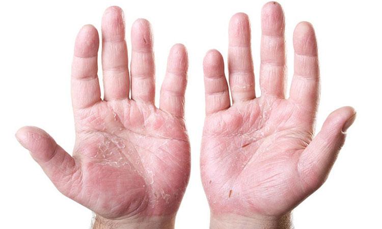 Hình ảnh bệnh chàm khô ở lòng bàn tay