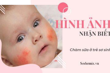Hình ảnh nhận biết chàm sữa ở trẻ sơ sinh
