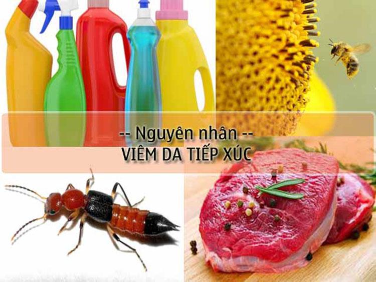 Tiếp xúc với các hóa chất tẩy rửa, dị ứng với thực phẩm, côn trùng cắn, phấn hoa,…là nguyên nhân gây viêm da tiếp xúc.