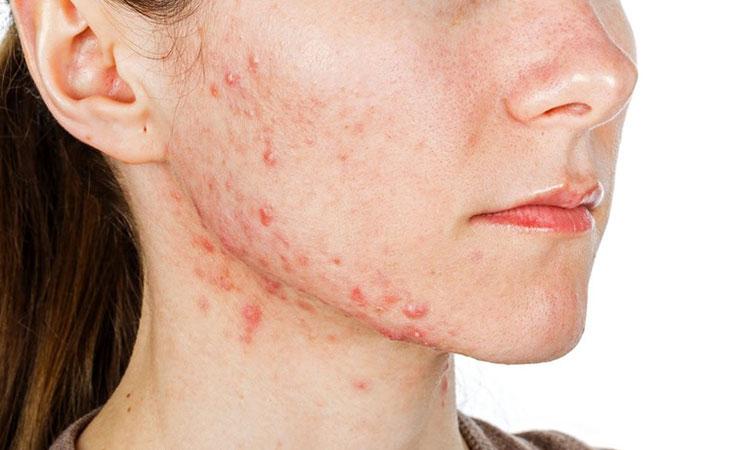 viêm da tiếp xúc ở mặt như nổi mẩn đỏ, mụn kèm theo ngứa ngáy