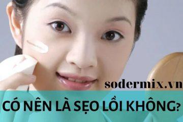 co-nen-la-seo-loi