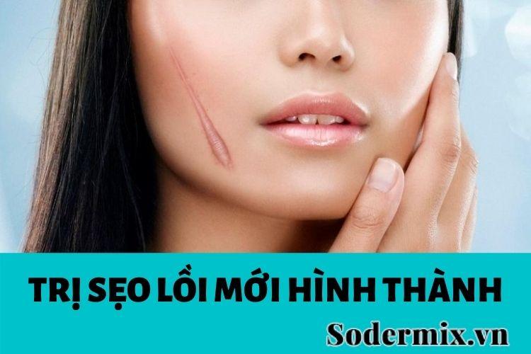 tri-seo-loi-moi-hinh-thanh