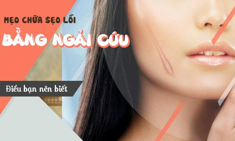 chua-seo-loi-bang-ngai-cuu
